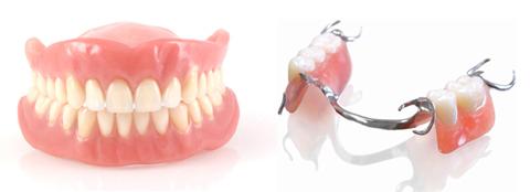 Phục hình tháo lắp tại Việt Đức Dental Lab
