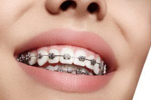 Có nên niềng răng khi đã trưởng thành?