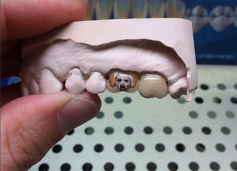 Sáng tạo răng sứ